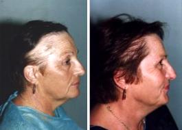 Greffe de cheveux pour femme montreal